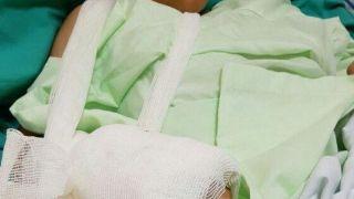 دست قطع شده کودک زلزلهزده پیوند زده شد+عکس
